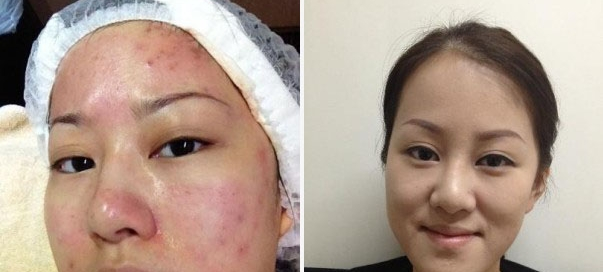 acne_treatment